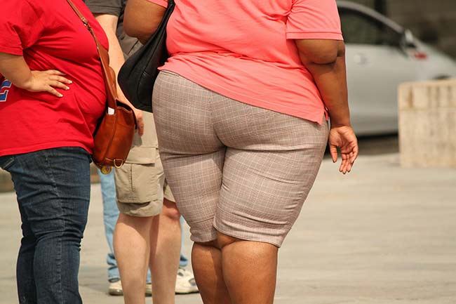 Il problema dell'obesità - prevenzione e trattamento